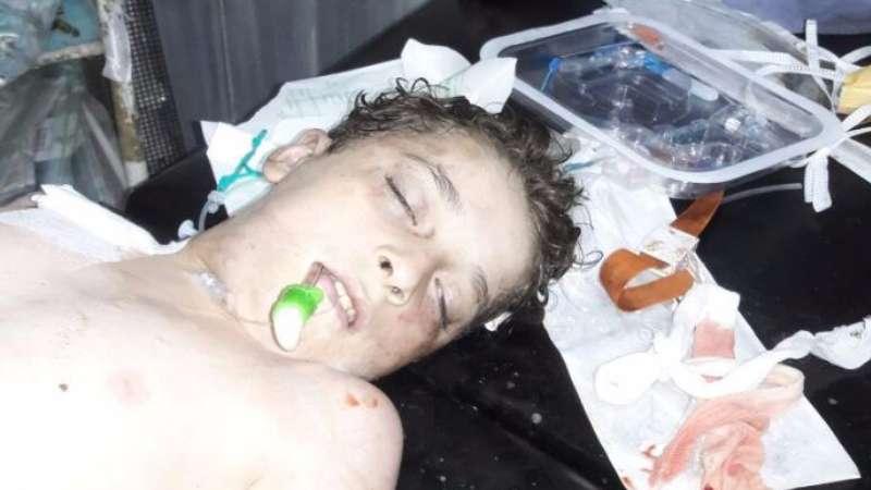 De Mistura: Aleppo was attacked with chlorine gas